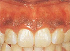 歯ぐきの黒ずみ 治療前