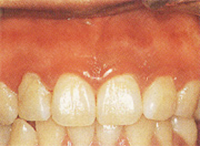 歯ぐきの黒ずみ 治療後